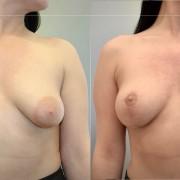 zabieg podniesienia piersi